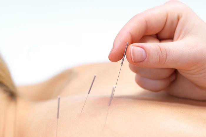 acupunctuur arts