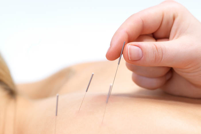 Acupunctuur behandeling TCM klniniek Shnzhou Amsterdam